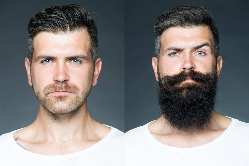 Biotin Results Side Effects Beard Care And Maintenance Natural Hair Vitamin B